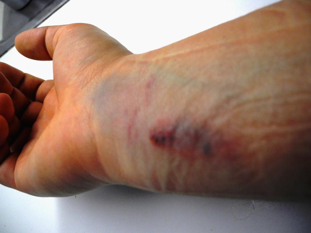 Klämskada på armen
